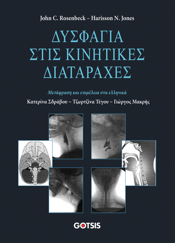 ExofDysphagia Q9